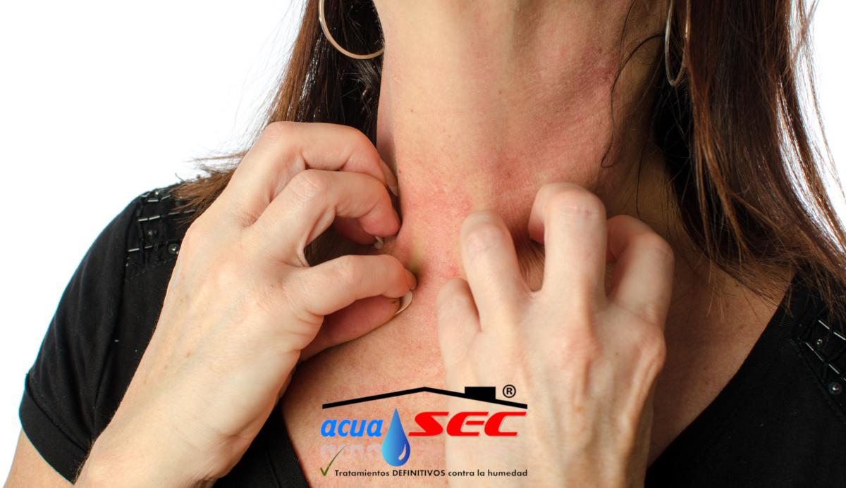 dermatitis humedad