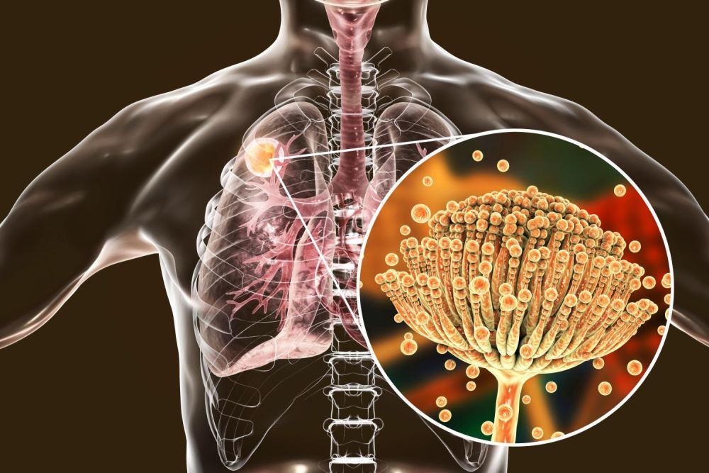 relacion-entre-las-infecciones-y-humedad