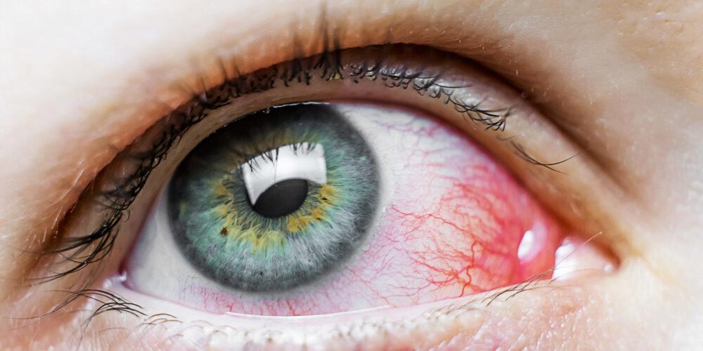 las-humedades-causan-irritacion-en-los-ojos